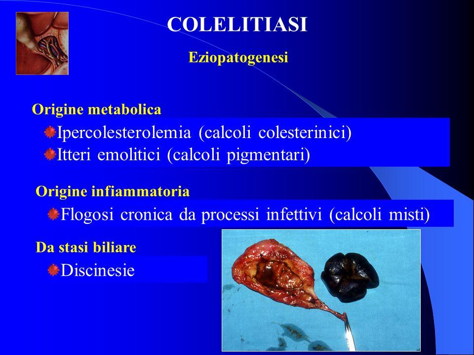 Ipercolesterolemia (calcoli colesterinici) Itteri emolitici (calcoli pigmentari) Eziopatogenesi COLELITIASI Origine metabolica Flogosi cronica da proc