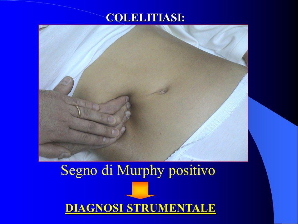 COLELITIASI: quadro clinico 1.Dolore in ipocondrio destro, irradiato 2.Massa palpabile 3.Vomito alimentare 4.Febbre (flogosi) 5.Leucocitosi neutrofila