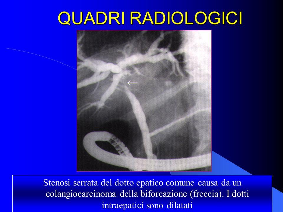 QUADRI RADIOLOGICI Stenosi serrata del dotto epatico comune causa da un colangiocarcinoma della biforcazione (freccia). I dotti intraepatici sono dila