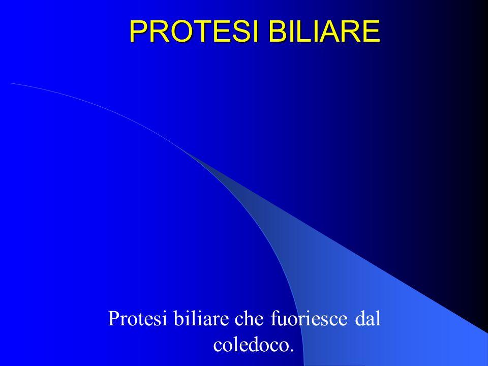 PROTESI BILIARE Protesi biliare che fuoriesce dal coledoco.