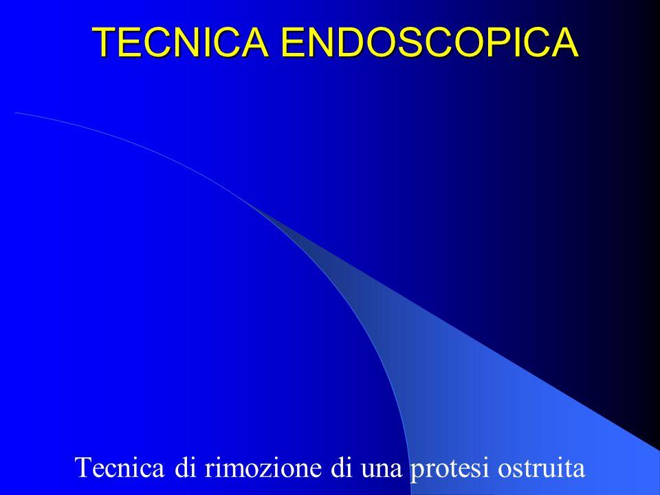 TECNICA ENDOSCOPICA Tecnica di rimozione di una protesi ostruita