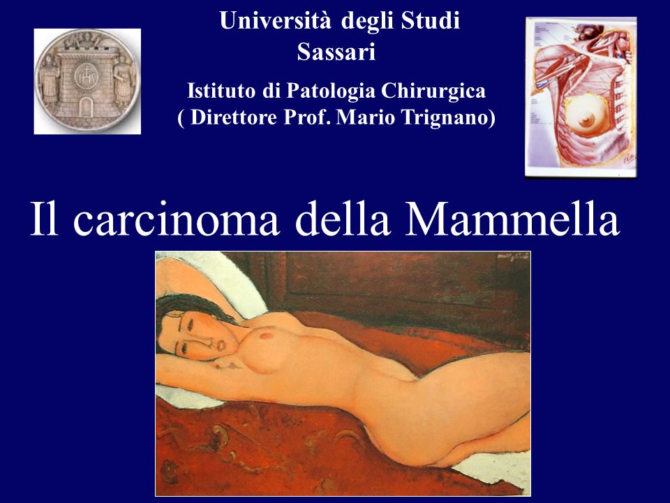Università degli Studi Sassari Istituto di Patologia Chirurgica ( Direttore Prof. Mario Trignano) Il carcinoma della Mammella