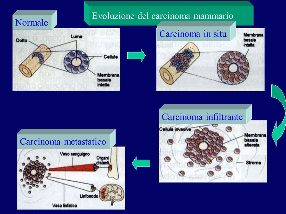 Normale Carcinoma in situ Carcinoma infiltrante Carcinoma metastatico Evoluzione del carcinoma mammario