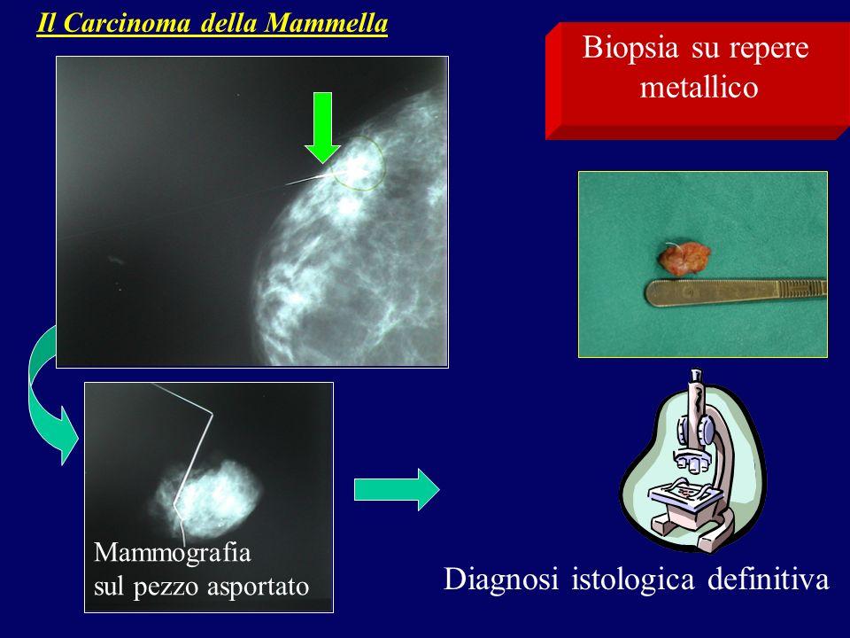 Il Carcinoma della Mammella Mammografia sul pezzo asportato Diagnosi istologica definitiva Biopsia su repere metallico