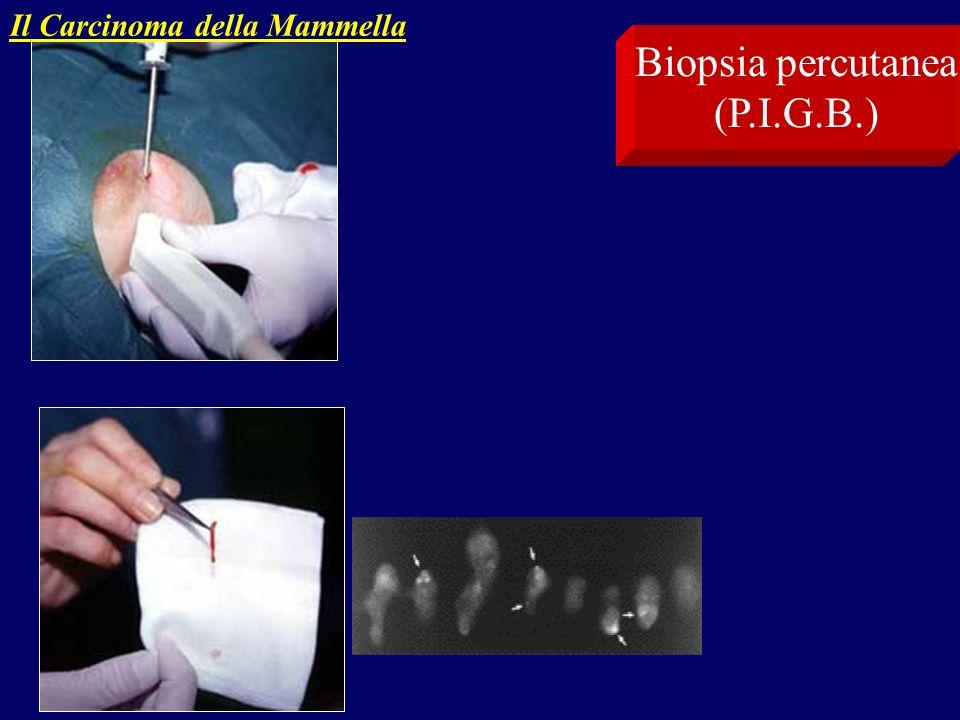 Il Carcinoma della Mammella Biopsia percutanea (P.I.G.B.)