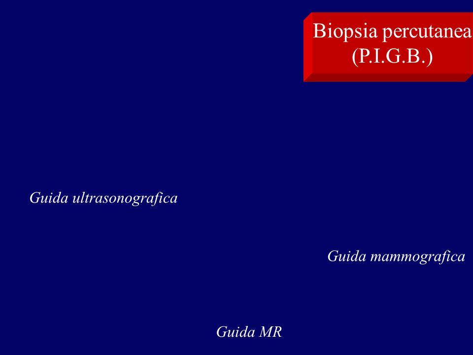 Guida MR Biopsia percutanea (P.I.G.B.) Guida ultrasonografica Guida mammografica