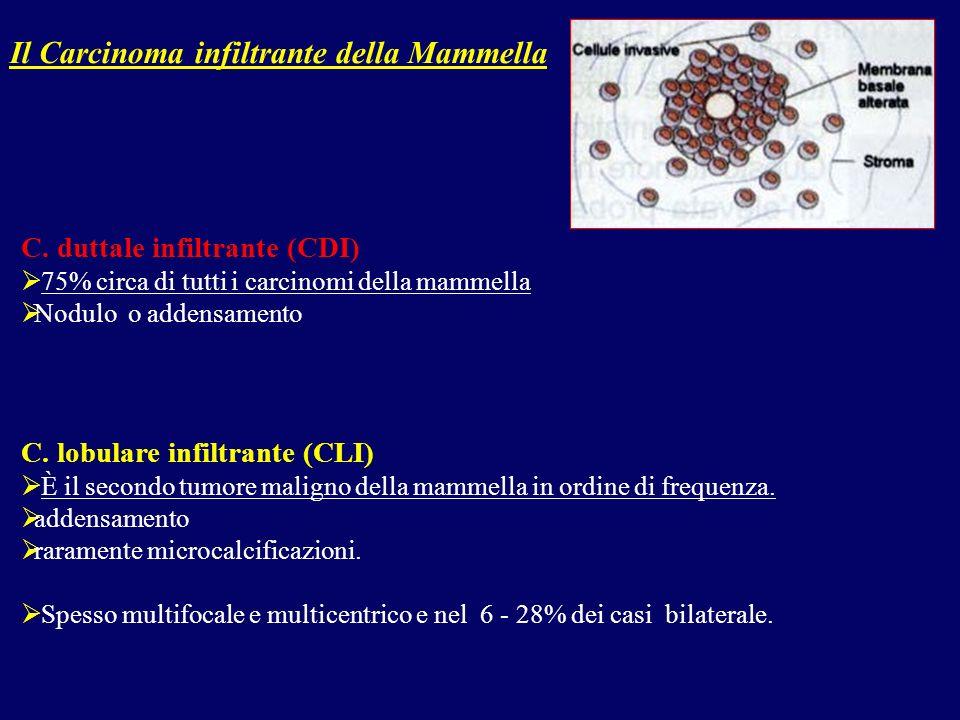 C. duttale infiltrante (CDI) 75% circa di tutti i carcinomi della mammella Nodulo o addensamento C. lobulare infiltrante (CLI) È il secondo tumore mal