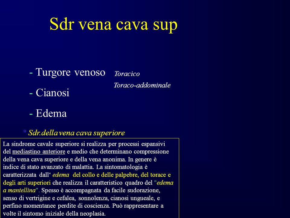 - Turgore venoso Toracico Toraco-addominale - Cianosi - Edema La sindrome cavale superiore si realizza per processi espansivi del mediastino anteriore e medio che determinano compressione della vena cava superiore e della vena anonima.