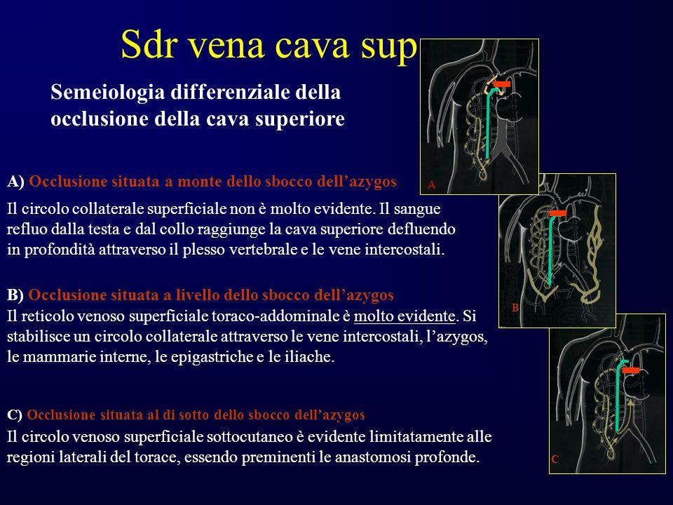 B) Occlusione situata a livello dello sbocco dellazygos Il reticolo venoso superficiale toraco-addominale è molto evidente.
