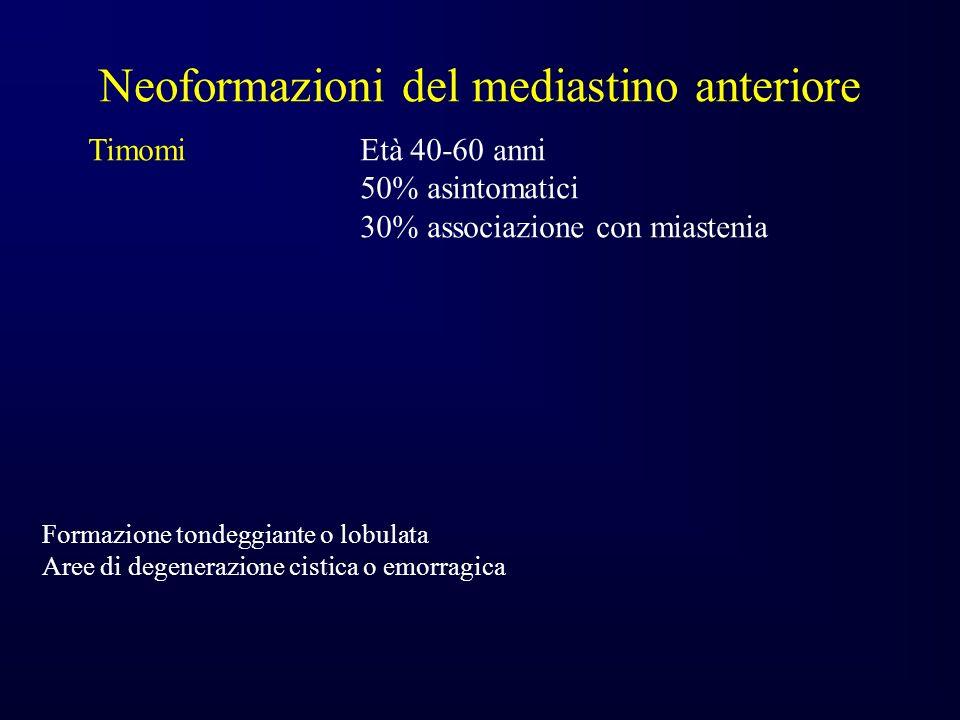Neoformazioni del mediastino anteriore TimomiEtà 40-60 anni 50% asintomatici 30% associazione con miastenia Formazione tondeggiante o lobulata Aree di degenerazione cistica o emorragica