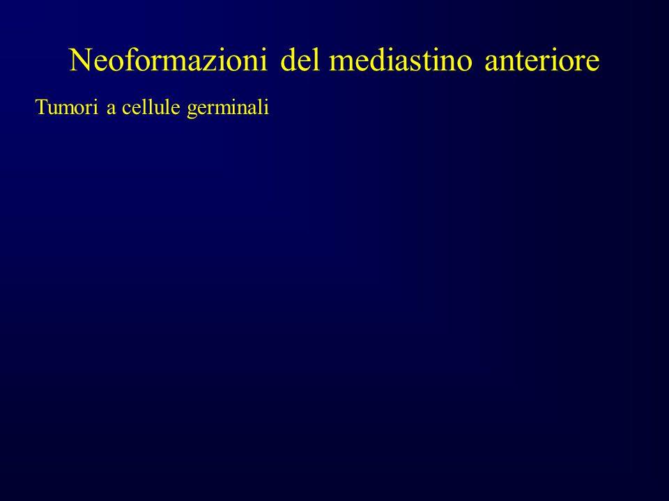 Neoformazioni del mediastino anteriore Tumori a cellule germinali