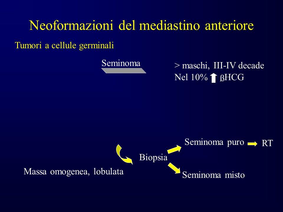 Neoformazioni del mediastino anteriore Tumori a cellule germinali Seminoma Massa omogenea, lobulata ß > maschi, III-IV decade Nel 10% HCG Biopsia Seminoma puro Seminoma misto RT