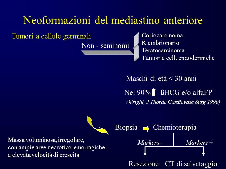 Neoformazioni del mediastino anteriore Tumori a cellule germinali Non - seminomi ßNel 90% HCG e/o alfaFP (Wright, J Thorac Cardiovasc Surg 1990) Coriocarcinoma K embrionario Teratocarcinoma Tumori a cell.