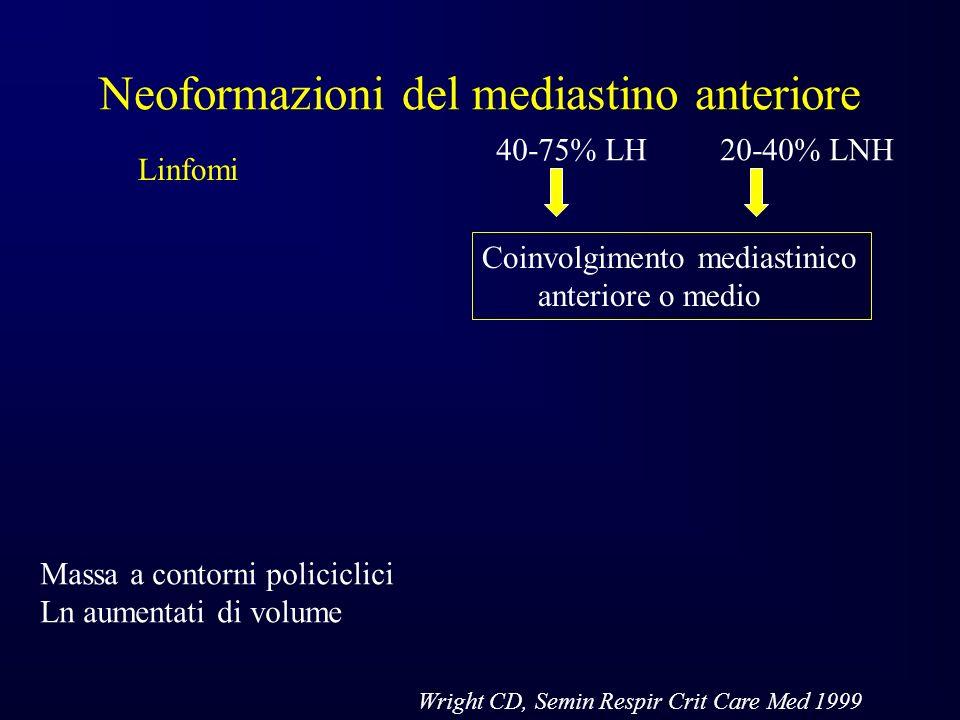 Neoformazioni del mediastino anteriore Linfomi Massa a contorni policiclici Ln aumentati di volume Coinvolgimento mediastinico anteriore o medio 40-75% LH 20-40% LNH Wright CD, Semin Respir Crit Care Med 1999