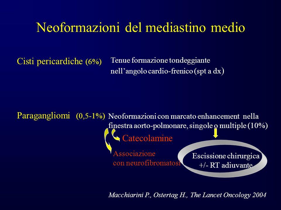 Neoformazioni del mediastino medio Cisti pericardiche (6%) Tenue formazione tondeggiante nellangolo cardio-frenico (spt a dx ) Neoformazioni con marcato enhancement nella finestra aorto-polmonare, singole o multiple (10%) Paragangliomi (0,5-1%) Catecolamine Escissione chirurgica +/- RT adiuvante Macchiarini P., Ostertag H., The Lancet Oncology 2004 Associazione con neurofibromatosi