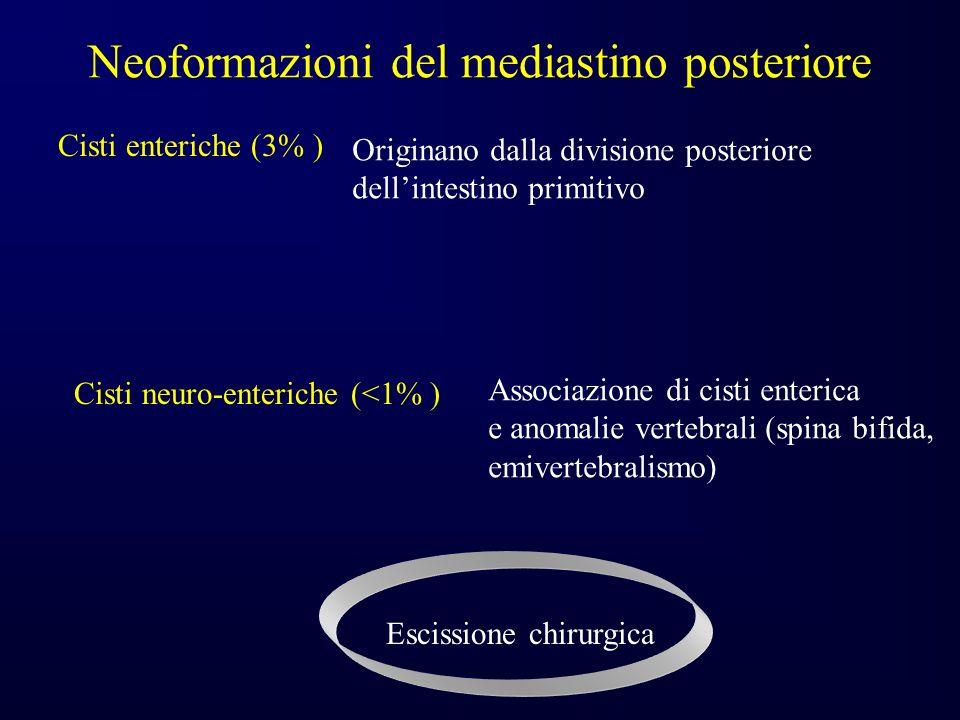 Neoformazioni del mediastino posteriore Cisti enteriche (3% ) Originano dalla divisione posteriore dellintestino primitivo Cisti neuro-enteriche (<1% ) Associazione di cisti enterica e anomalie vertebrali (spina bifida, emivertebralismo) Escissione chirurgica