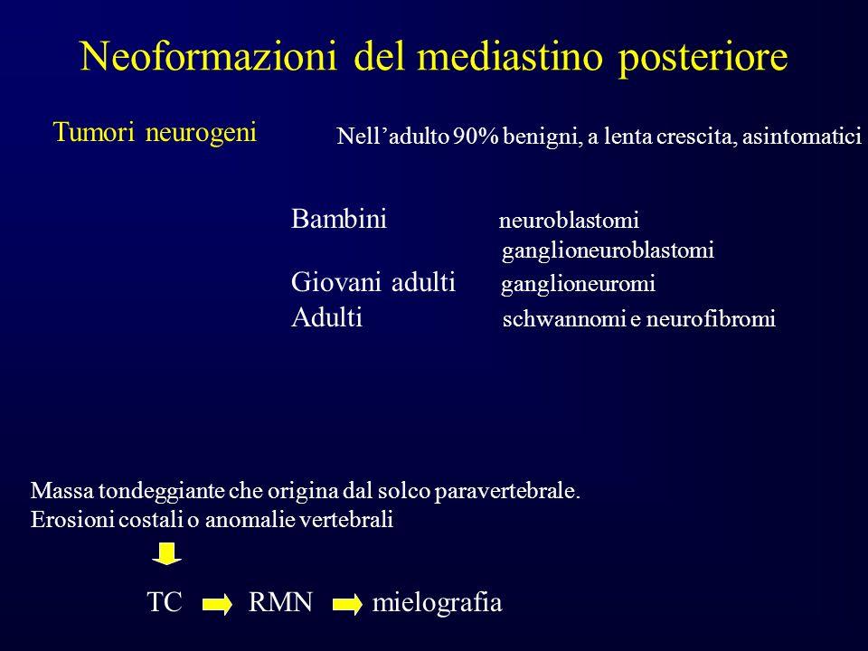 Neoformazioni del mediastino posteriore Tumori neurogeni Nelladulto 90% benigni, a lenta crescita, asintomatici Bambini neuroblastomi ganglioneuroblastomi Giovani adulti ganglioneuromi Adulti schwannomi e neurofibromi Massa tondeggiante che origina dal solco paravertebrale.