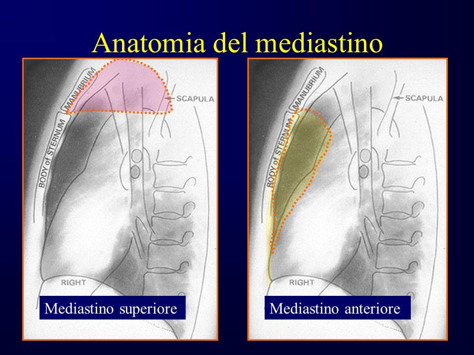 Anatomia del mediastino Mediastino superioreMediastino anteriore