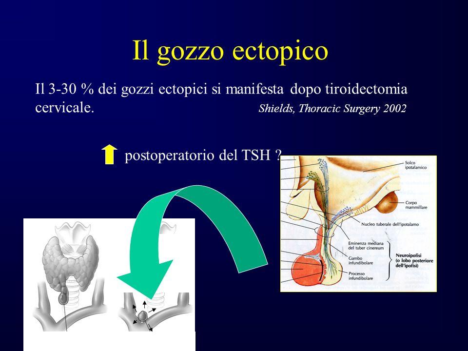 Il gozzo ectopico Il 3-30 % dei gozzi ectopici si manifesta dopo tiroidectomia cervicale.