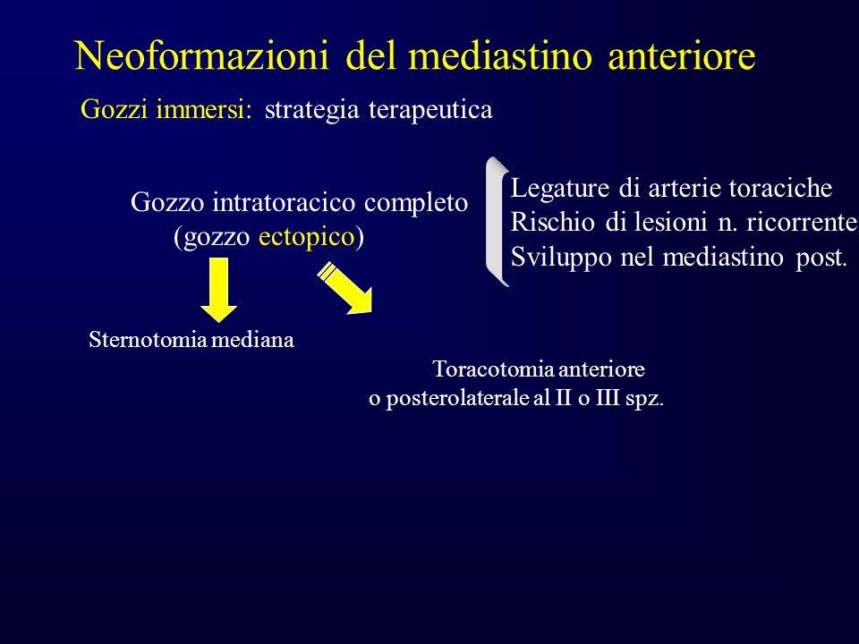 Gozzo intratoracico completo (gozzo ectopico) Sternotomia mediana Toracotomia anteriore o posterolaterale al II o III spz.
