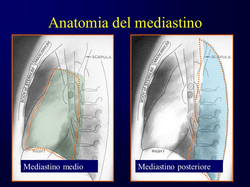 Anatomia del mediastino Mediastino medioMediastino posteriore