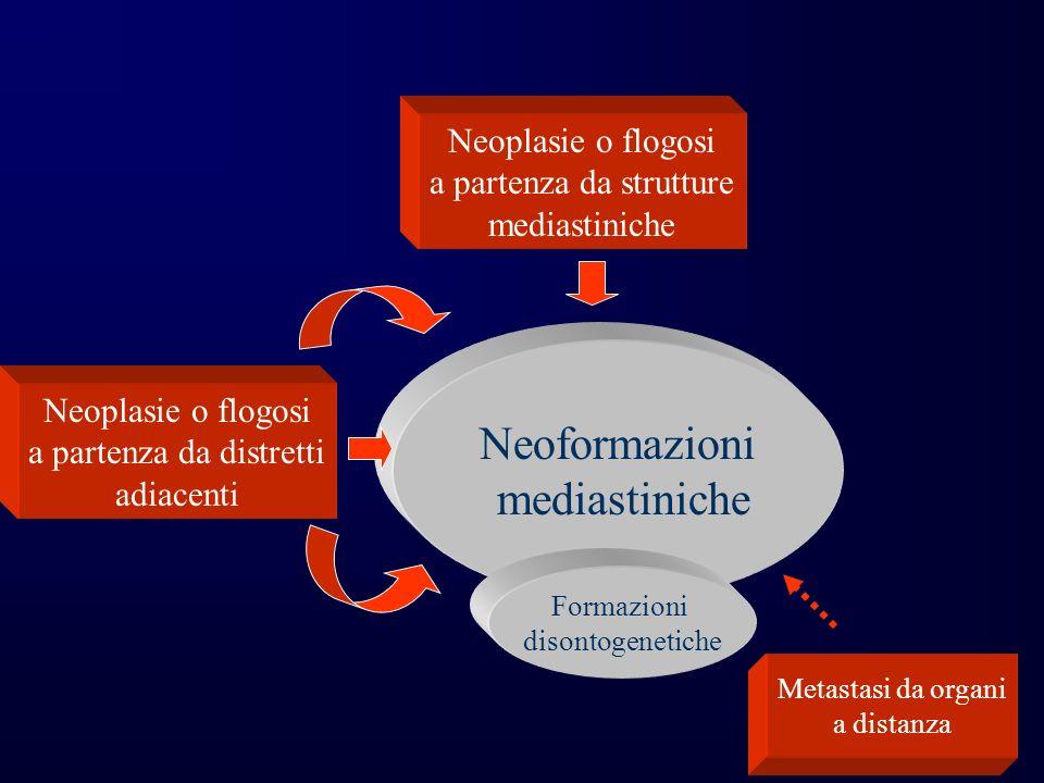 Neoplasie o flogosi a partenza da strutture mediastiniche Neoplasie o flogosi a partenza da distretti adiacenti Metastasi da organi a distanza Neoformazioni mediastiniche Formazioni disontogenetiche