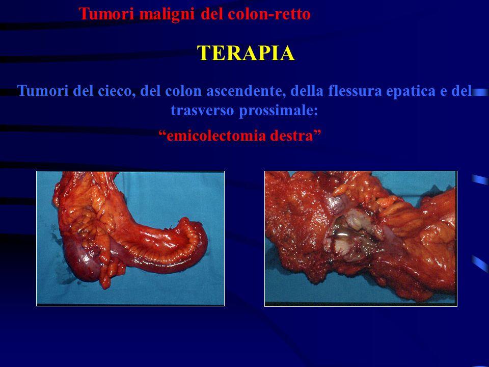 Tumori maligni del colon-retto Tumori del cieco, del colon ascendente, della flessura epatica e del trasverso prossimale: TERAPIA emicolectomia destra