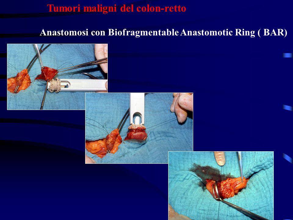 Tumori maligni del colon-retto Anastomosi con Biofragmentable Anastomotic Ring ( BAR)