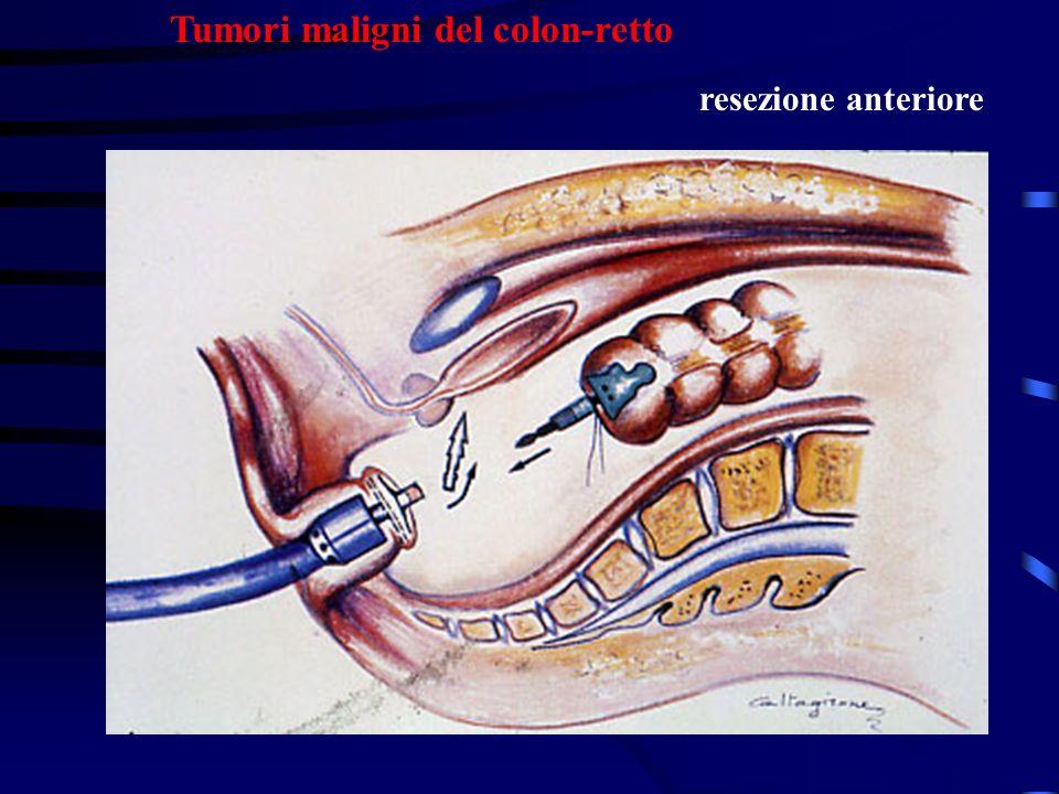 Tumori maligni del colon-retto resezione anteriore