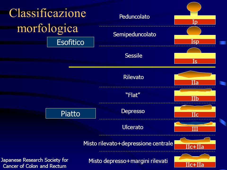 Classificazione morfologica Esofitico Piatto Japanese Research Society for Cancer of Colon and Rectum IIa Ip Is Isp IIb IIc+IIa IIc IIc+IIa III Pedunc