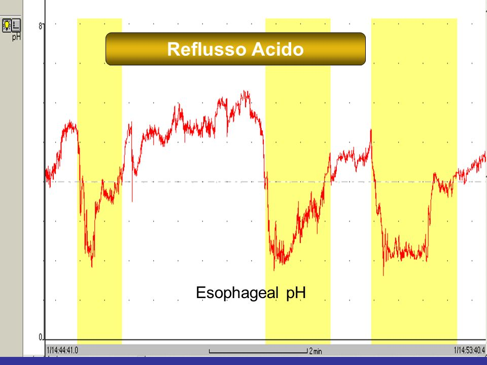 11 Esophageal pH Reflusso Acido