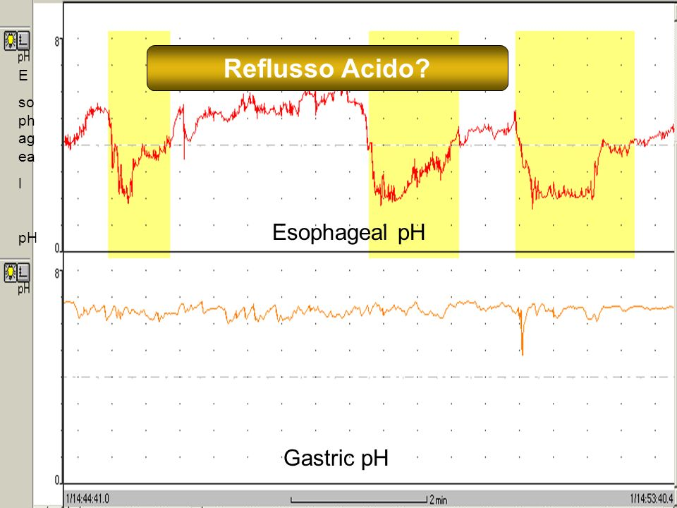 12 E so ph ag ea l pH Esophageal pH Gastric pH Reflusso Acido