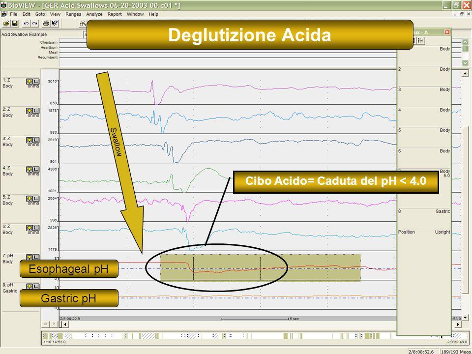 17 Cibo Acido= Caduta del pH < 4.0 Swallow Esophageal pH Gastric pH Deglutizione Acida