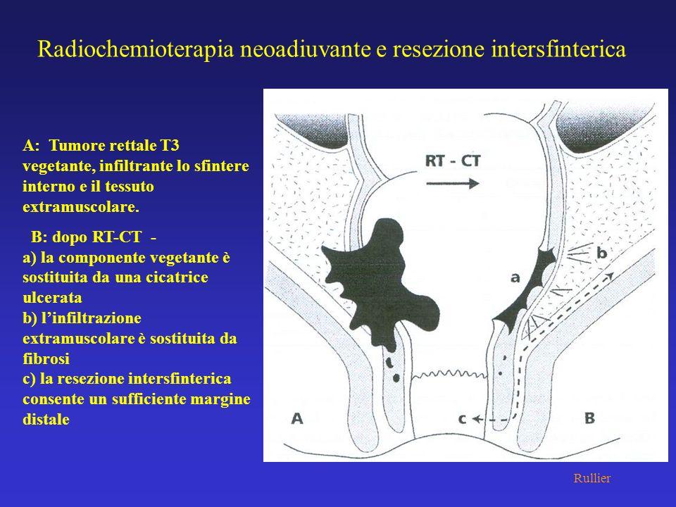 Radiochemioterapia neoadiuvante e resezione intersfinterica A: Tumore rettale T3 vegetante, infiltrante lo sfintere interno e il tessuto extramuscolar