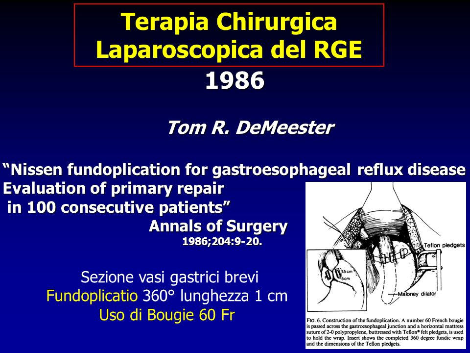1986 1986 Tom R. DeMeester Tom R. DeMeester Nissen fundoplication for gastroesophageal reflux disease Evaluation of primary repair in 100 consecutive