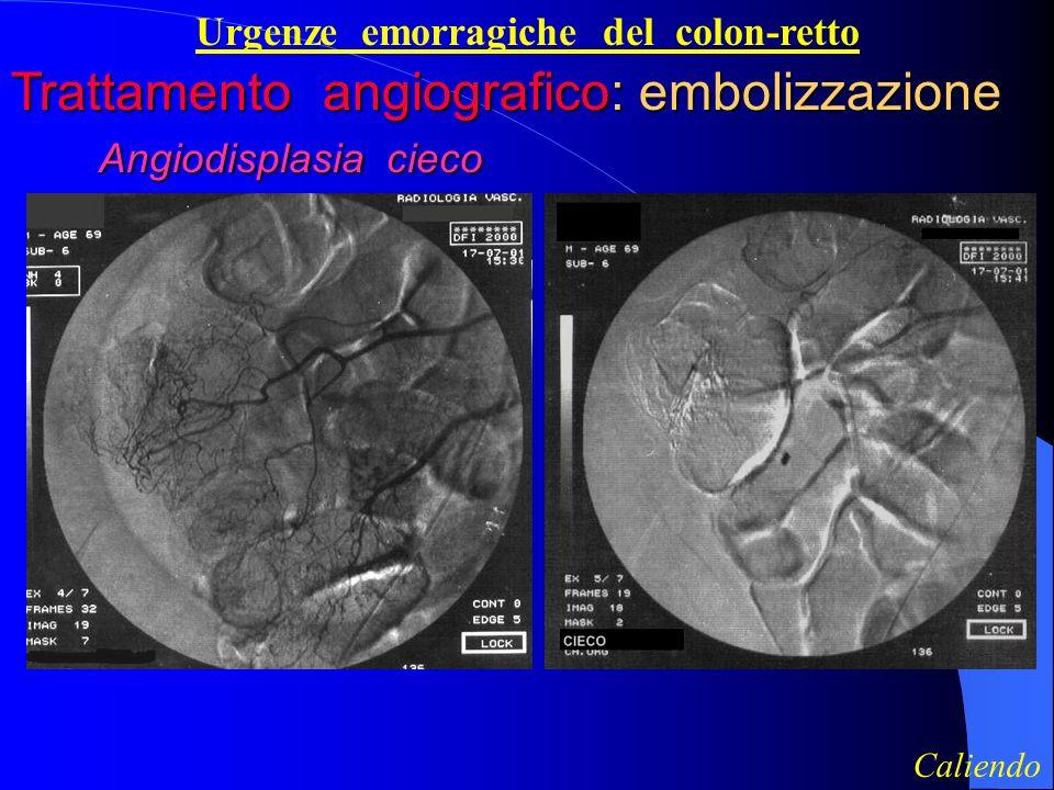 Urgenze emorragiche del colon-retto Trattamento angiografico: embolizzazione Angiodisplasia cieco Angiodisplasia cieco Caliendo