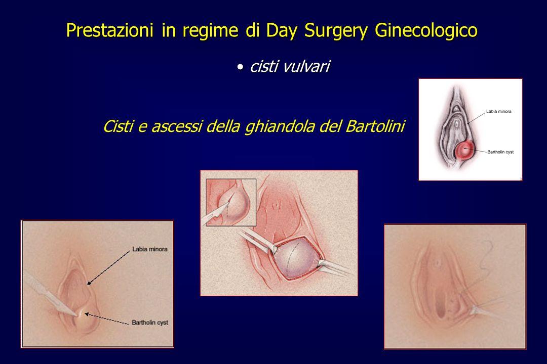 Prestazioni in regime di Day Surgery Ginecologico cisti vulvari cisti vulvari Cisti e ascessi della ghiandola del Bartolini