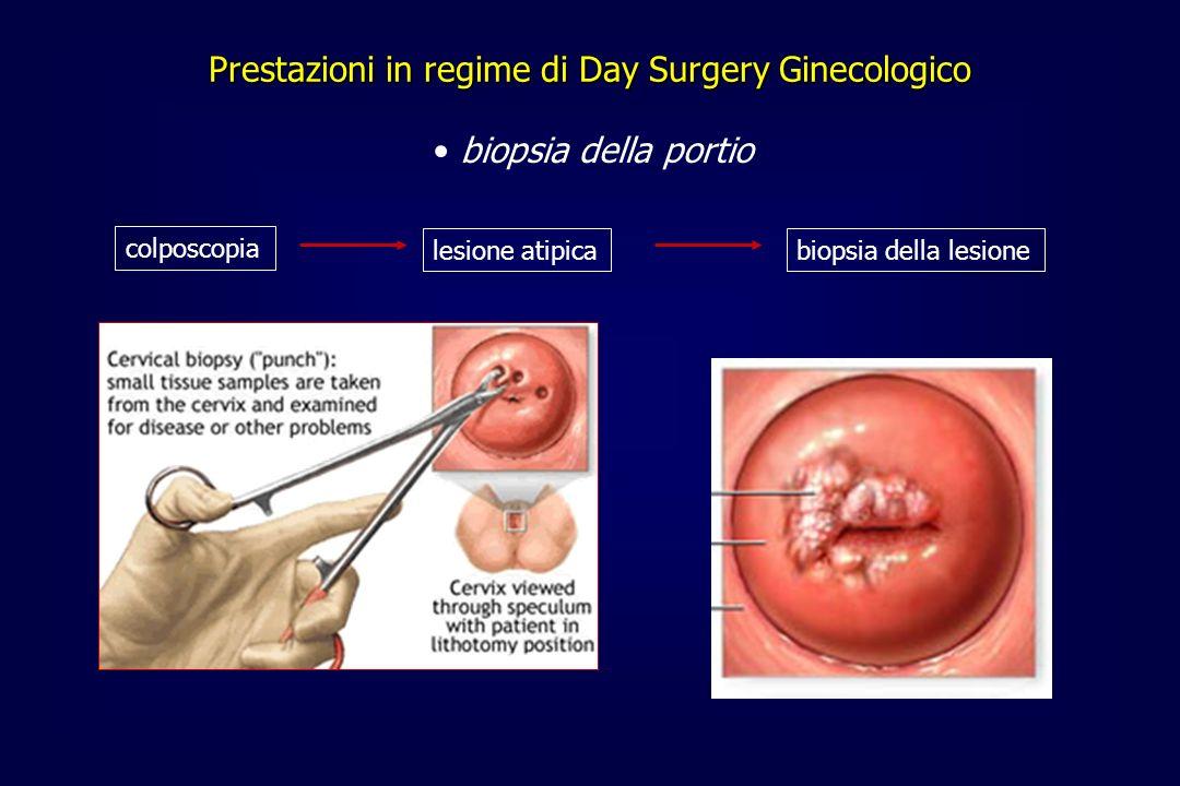 biopsia della portio Prestazioni in regime di Day Surgery Ginecologico colposcopia lesione atipicabiopsia della lesione