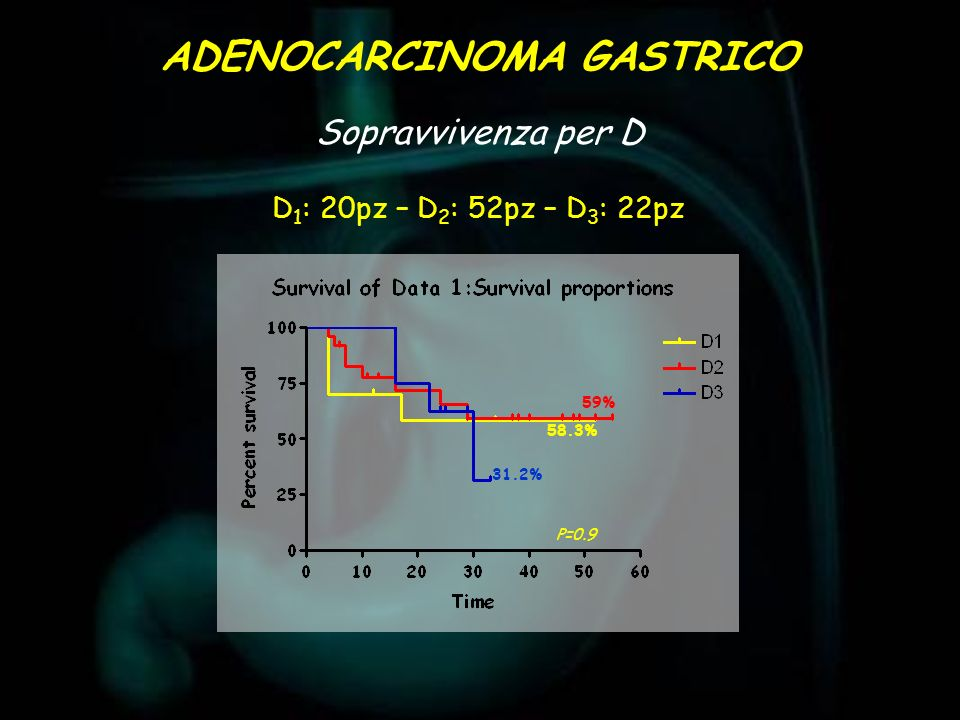 Sopravvivenza per D ADENOCARCINOMA GASTRICO D 1 : 20pz – D 2 : 52pz – D 3 : 22pz 31.2% 59% 58.3% P=0.9