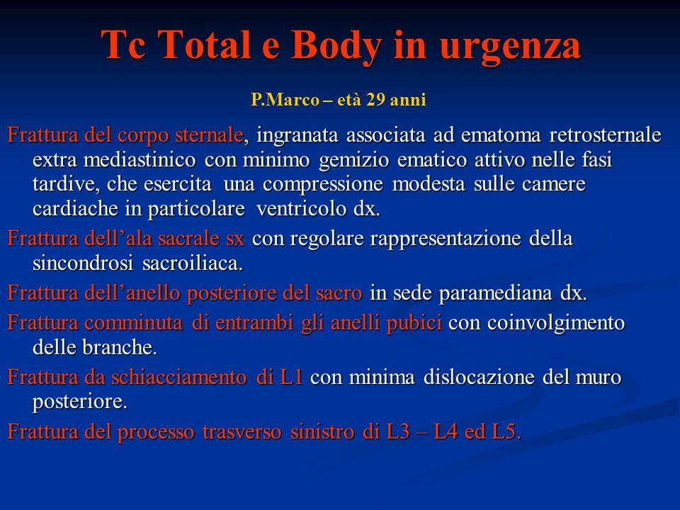 Tc Total e Body in urgenza Frattura del corpo sternale, ingranata associata ad ematoma retrosternale extra mediastinico con minimo gemizio ematico att