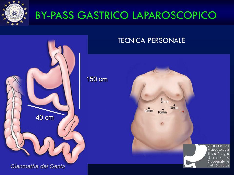 150 cm 150 cm 40 cm 40 cm BY-PASS GASTRICO LAPAROSCOPICO Gianmattia del Genio TECNICA PERSONALE.