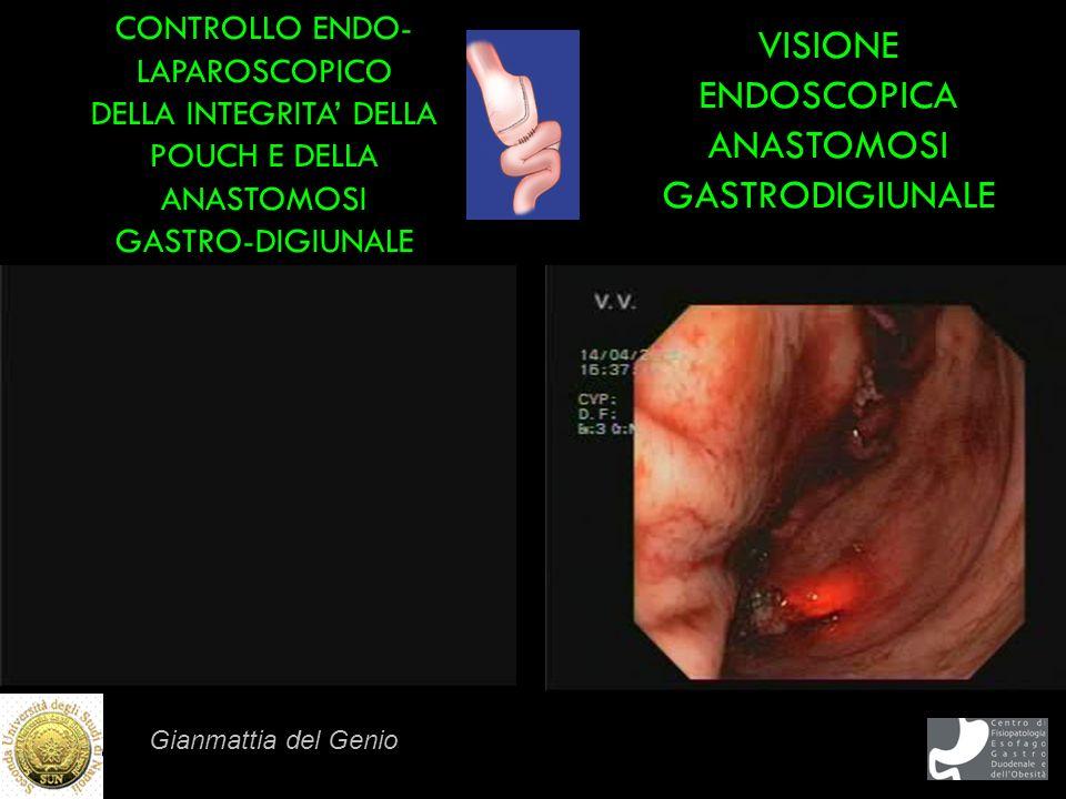 Gianmattia del Genio VISIONE ENDOSCOPICA ANASTOMOSI GASTRODIGIUNALE CONTROLLO ENDO- LAPAROSCOPICO DELLA INTEGRITA DELLA POUCH E DELLA ANASTOMOSI GASTR