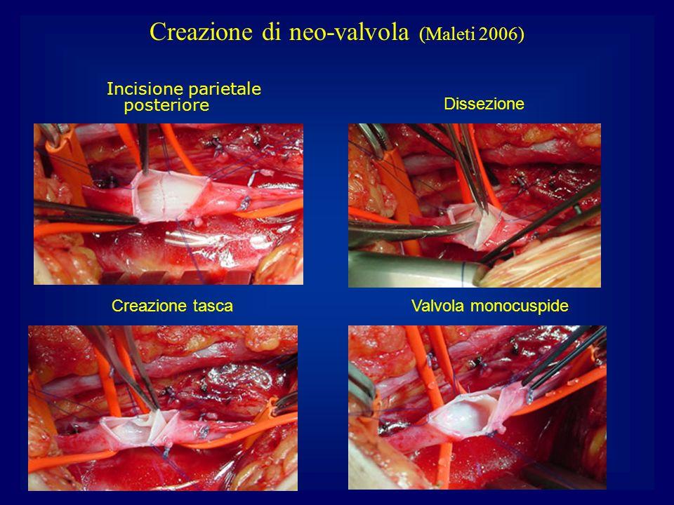 Incisione parietale posteriore Dissezione Creazione tascaValvola monocuspide Creazione di neo-valvola (Maleti 2006)