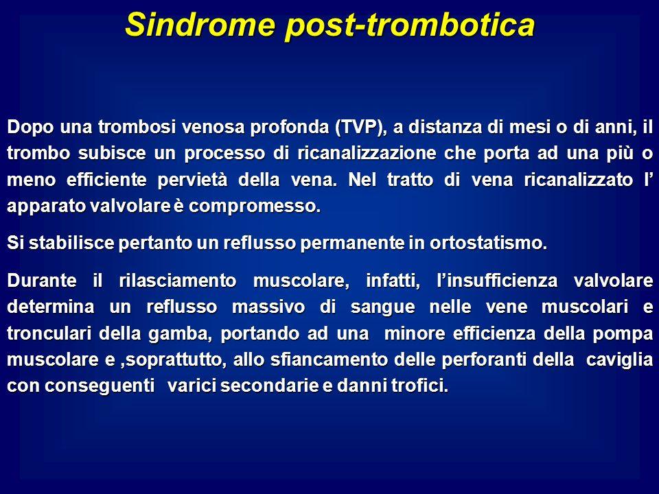 Sindrome post-trombotica Dopo una trombosi venosa profonda (TVP), a distanza di mesi o di anni, il trombo subisce un processo di ricanalizzazione che