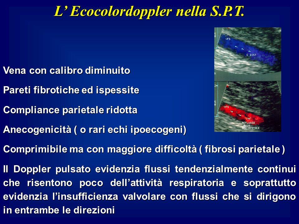 L Ecocolordoppler nella S.P.T. Vena con calibro diminuito Pareti fibrotiche ed ispessite Compliance parietale ridotta Anecogenicità ( o rari echi ipoe