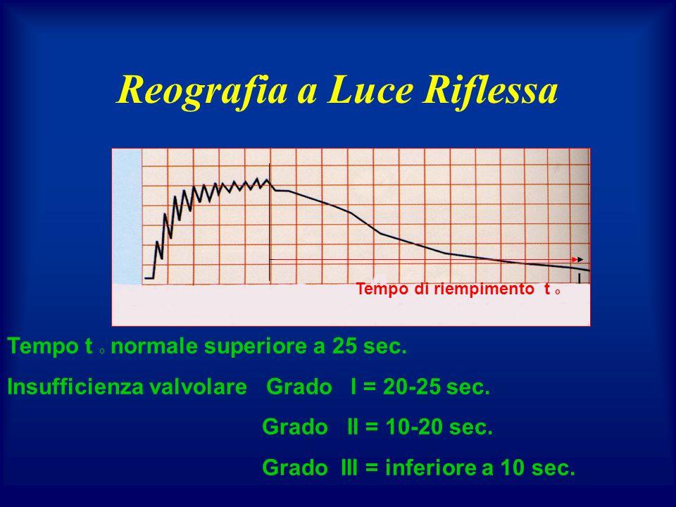 Reografia a Luce Riflessa Tempo di riempimento t o Tempo t o normale superiore a 25 sec. Insufficienza valvolare Grado I = 20-25 sec. Grado II = 10-20