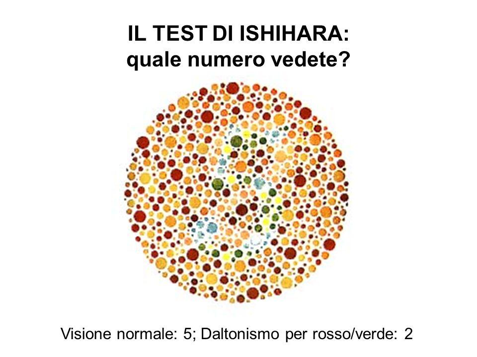 IL TEST DI ISHIHARA: quale numero vedete? Visione normale: 5; Daltonismo per rosso/verde: 2