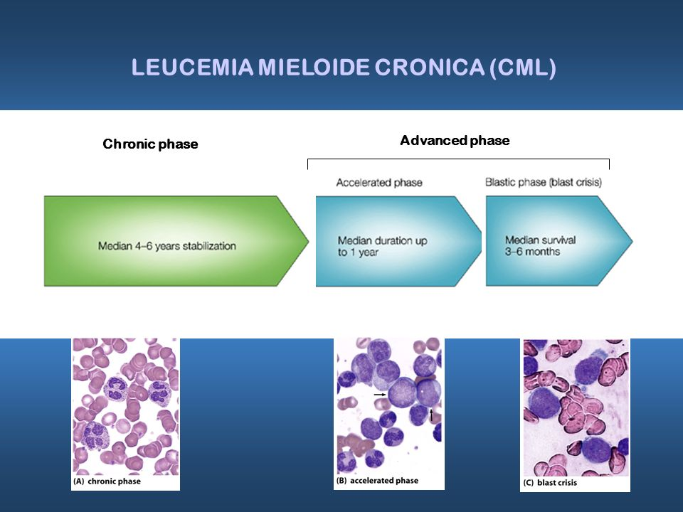 Chronic phase LEUCEMIA MIELOIDE CRONICA (CML) Advanced phase