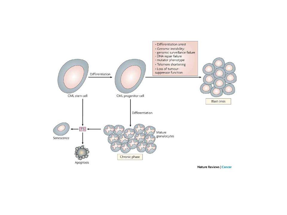 PRINCIPALI TERAPIE PER LA CML idrossiurea interferone- (IFN- ) IFN- + araC trapianto eterologo di cellule staminali trapianto autologo di cellule staminali