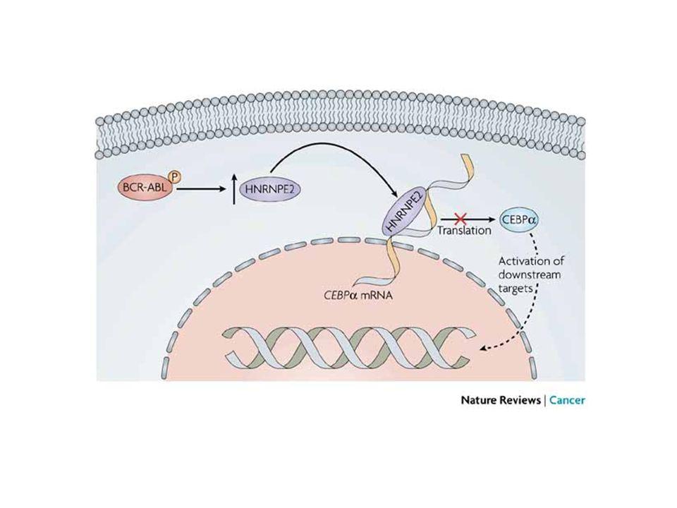 ULTERIORI APPLICAZIONI TERAPEUTICHE DEL GLIVEC CMML Chronic myelomonocytic leukemia